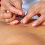PJP blog - acupuncture help sciatica
