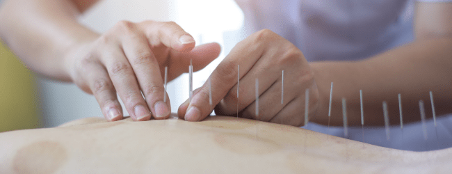 PJP blog - why acupuncture works